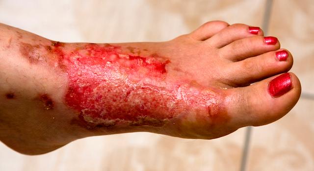 blog-wound-care-telehealth