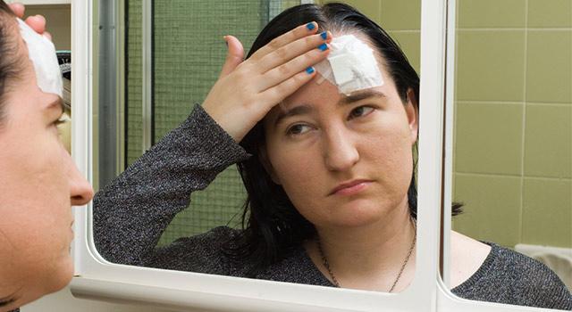 blog-concussion