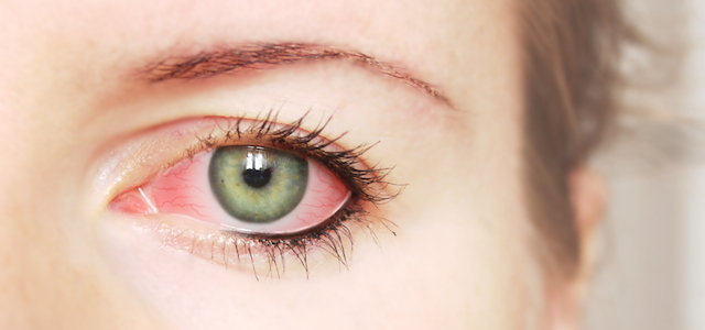 condition-pink-eye