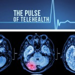 Time is Brain: How Telestroke is Making an Impact