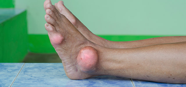 condition-gout